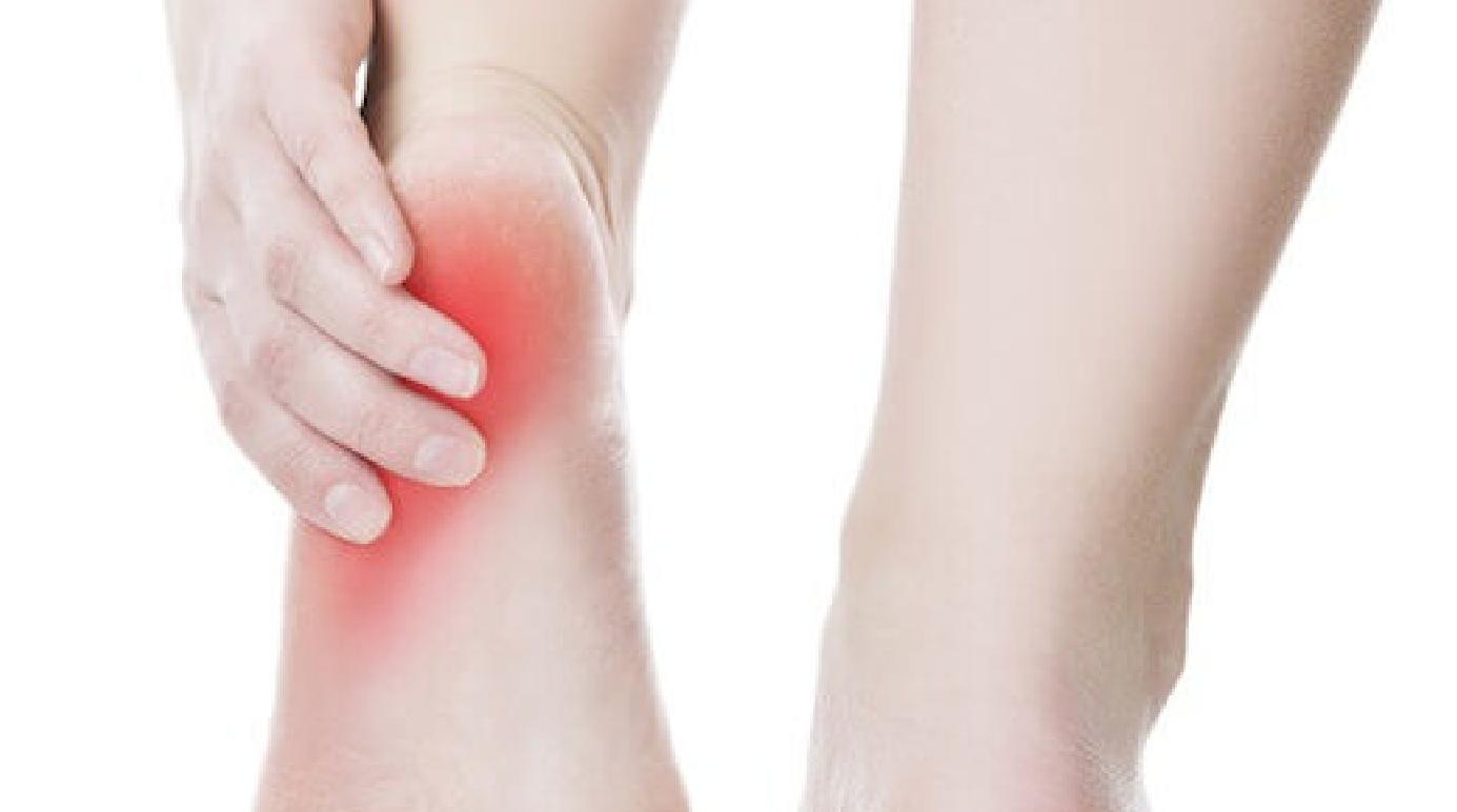 כאבים ברגל בעקב